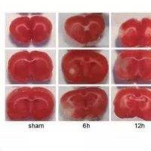 心肌缺血模型