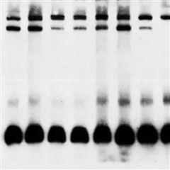 WB 普通蛋白