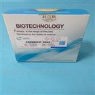 胰高血糖素样肽-1(活性)放免试剂盒